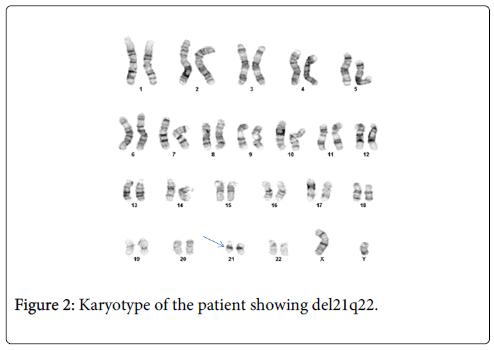 molecular-biomarkers-diagnosis-Karyotype