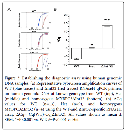 molecular-biomarkers-diagnosis-Representative-SybrGreen-amplification