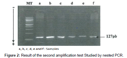 molecular-biomarkers-diagnosis-Studied-nested