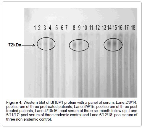 molecular-biomarkers-diagnosis-Western-blot