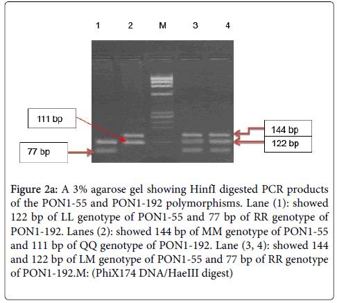 molecular-biomarkers-diagnosis-agarose-gel