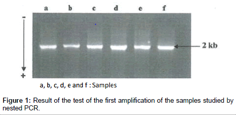 molecular-biomarkers-diagnosis-first-amplification