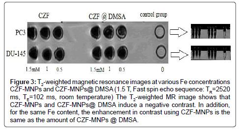 molecular-biomarkers-diagnosis-magnetic-resonance