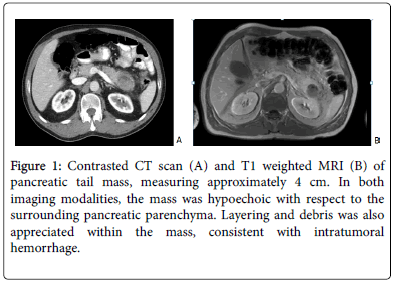 molecular-biomarkers-diagnosis-surrounding-pancreatic-parenchyma