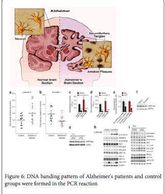 molecular-genetic-Alzheimer-patients