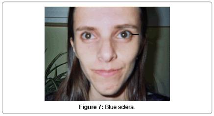 molecular-genetic-medicine-Blue-sclera