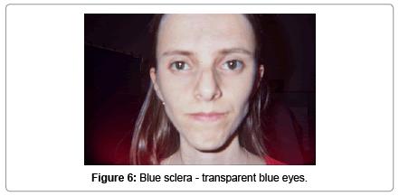 molecular-genetic-medicine-Blue-sclera-transparent-blue-eyes