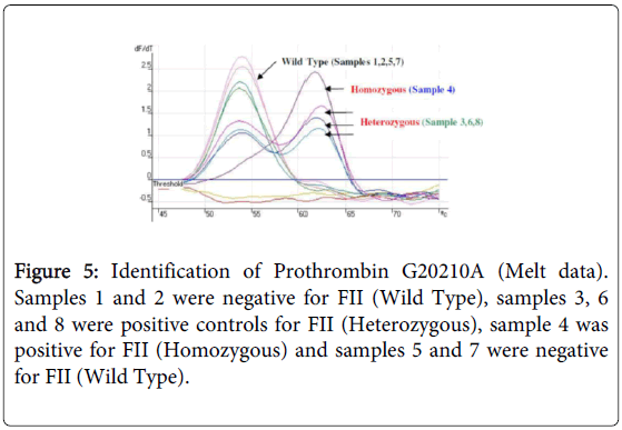 molecular-genetic-medicine-Identification-Prothrombin
