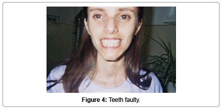 molecular-genetic-medicine-Teeth-faulty