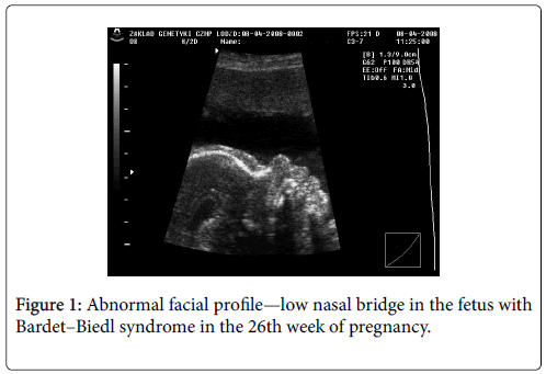 molecular-genetic-medicine-abnormal-facial-profile