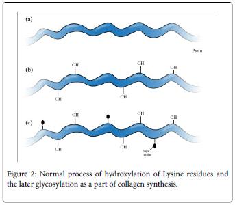 molecular-genetic-medicine-hydroxylation-Lysine