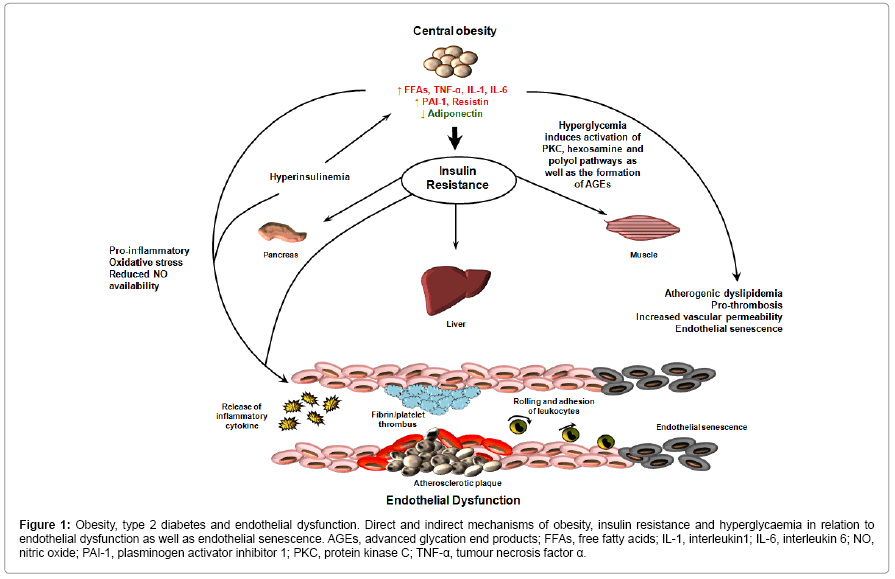Diet-induced obesity model