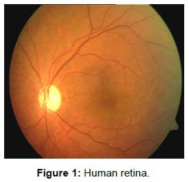 molecular-imaging-dynamics-Human-retina