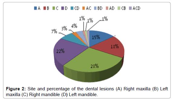 molecular-imaging-dynamics-Right-maxilla