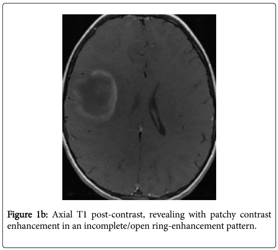 multiple-sclerosis-patchy-contrast