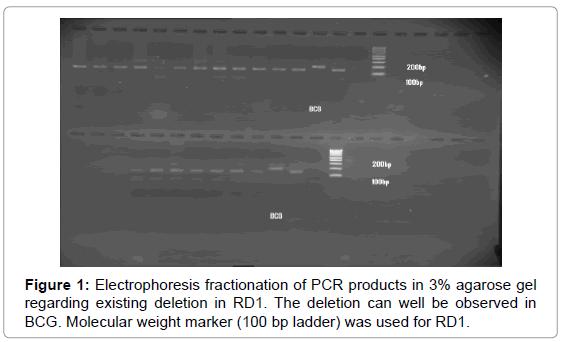 mycobacterial-diseases-Electrophoresis-fractionation
