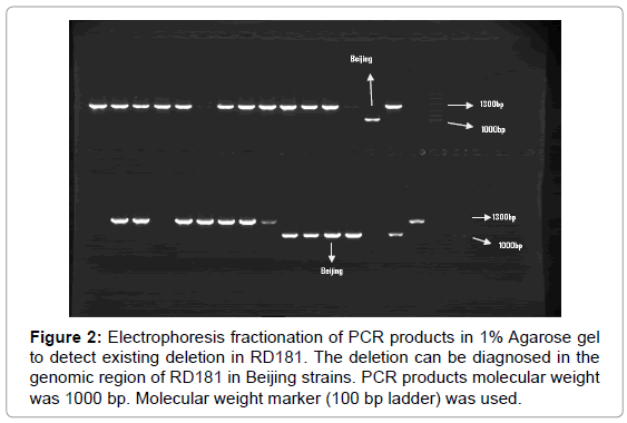 mycobacterial-diseases-PCR-products
