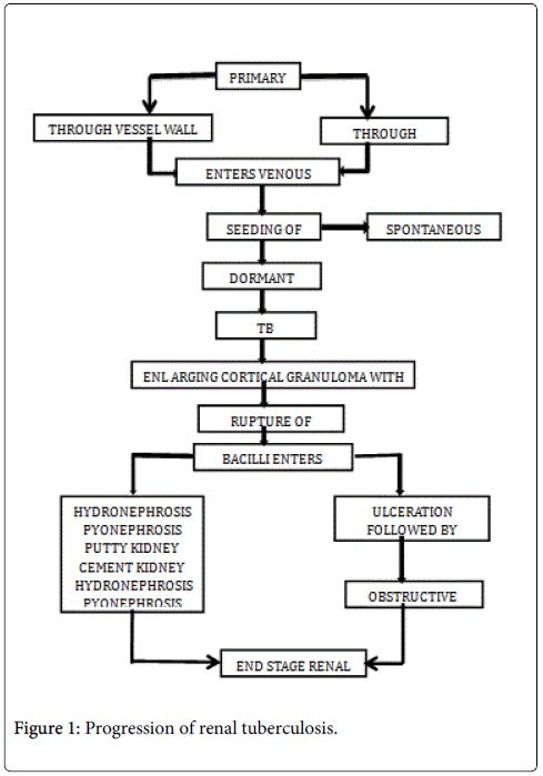 mycobacterial-diseases-renal-tuberculosis