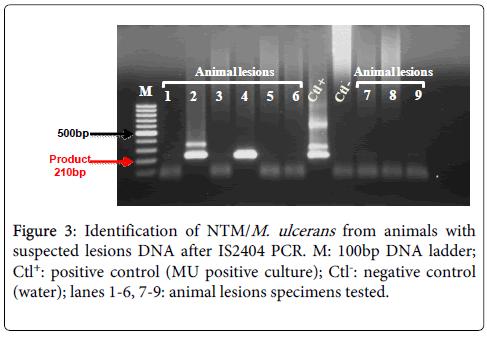 mycobacterial-diseases-specimens-tested