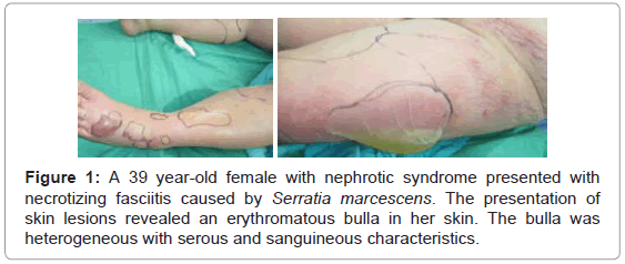 nephrology-therapeutics-female-nephrotic-syndrome