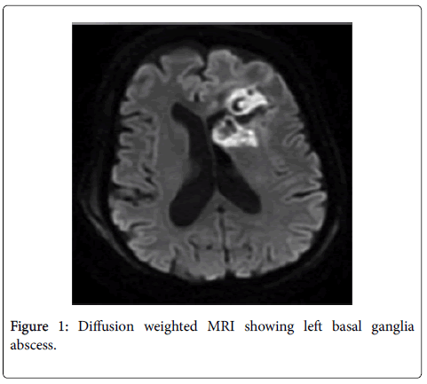 neuroinfectious-diseases-basal-ganglia-abscess