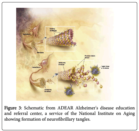 neuroinfectious-diseases-disease-education