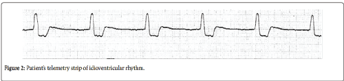neuroinfectious-diseases-idioventricular-rhythm