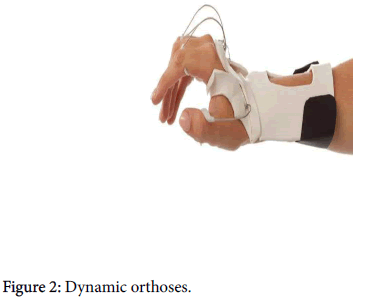 neurological-disorders-Dynamic-orthoses