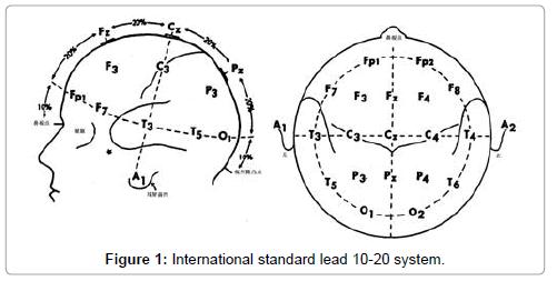 neurological-disorders-International-standard-lead