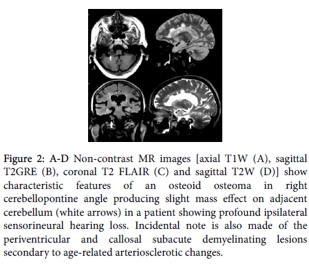 neurological-disorders-Non-contrast-MR-images