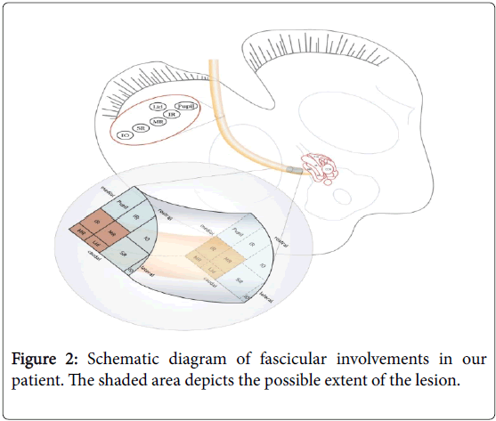 neurological-disorders-Schematic-fascicular-involvements