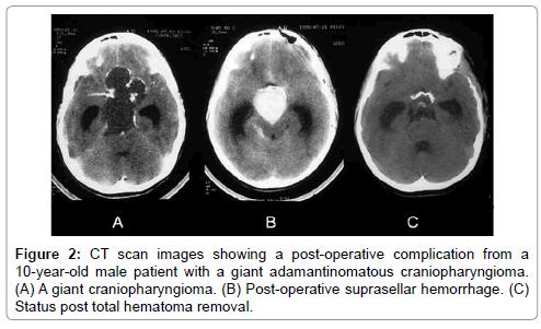 neurological-disorders-adamantinomatous-craniopharyngioma
