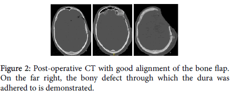 neurological-disorders-bony-defect