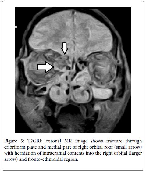 neurological-disorders-cribriform-plate-medial-part