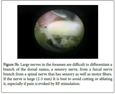 neurological-disorders-dorsal-ramus-sensory-nerve