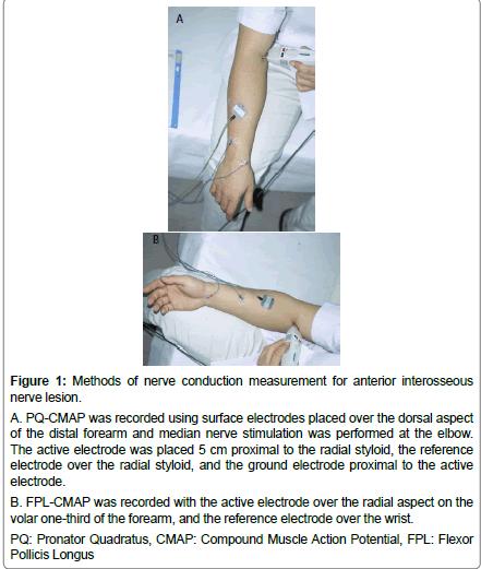 neurology-neurophysiology-electrodes-placed