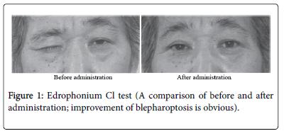 neurology-neurophysiology-improvement-blepharoptosis