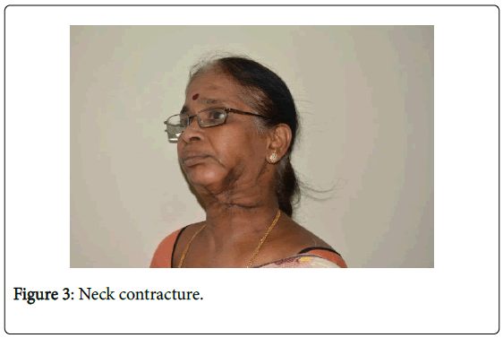novel-physiotherapies-Neck-contracture