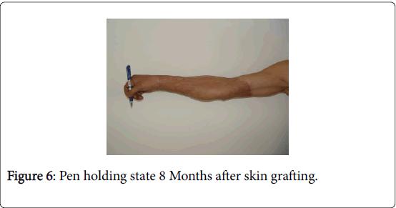 novel-physiotherapies-Pen-holding