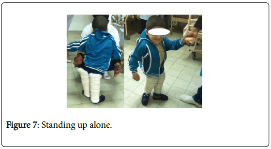 novel-physiotherapies-Standing-up-alone