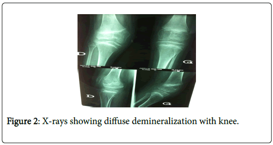 novel-physiotherapies-diffuse-demineralization