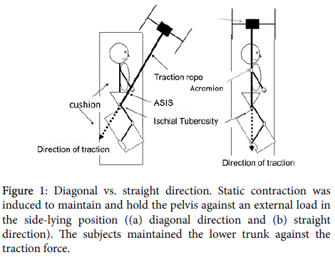 novel-physiotherapies-straight-direction