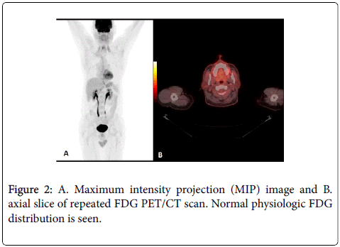 nuclear-medicine-Maximum-intensity