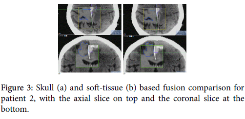 nuclear-medicine-axial-slice-top-coronal-slice