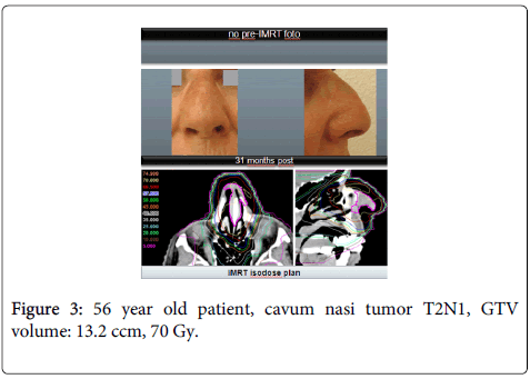 nuclear-medicine-cavum-nasi