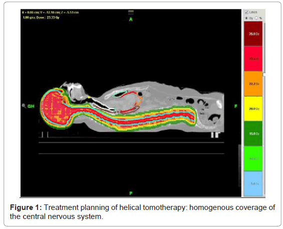 nuclear-medicine-planning-helical-tomotherapy