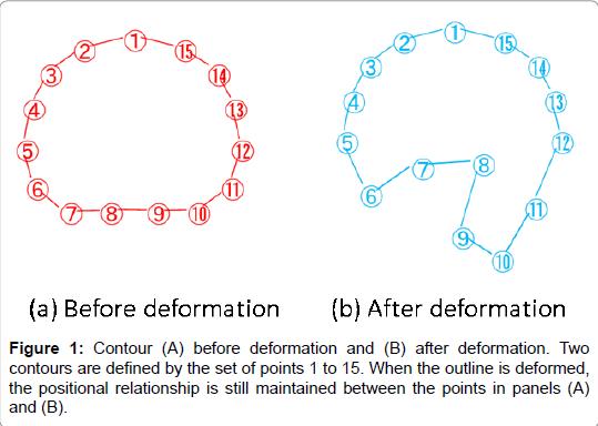 nuclear-medicine-radiation-deformation
