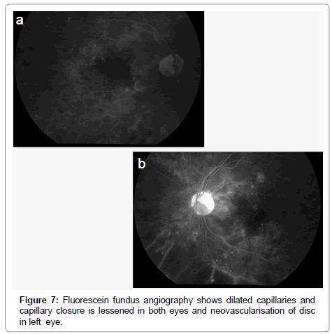 nuclear-medicine-radiation-dilated-capillaries