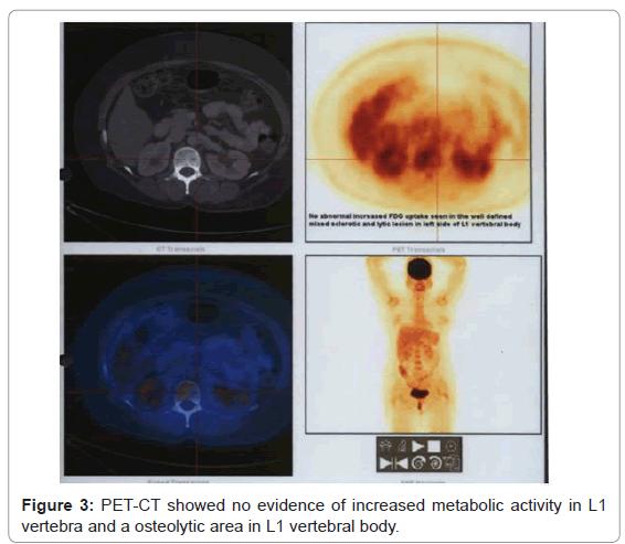 nuclear-medicine-vertebra-osteolytic-area