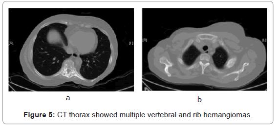 nuclear-medicine-vertebral-rib-hemangiomas
